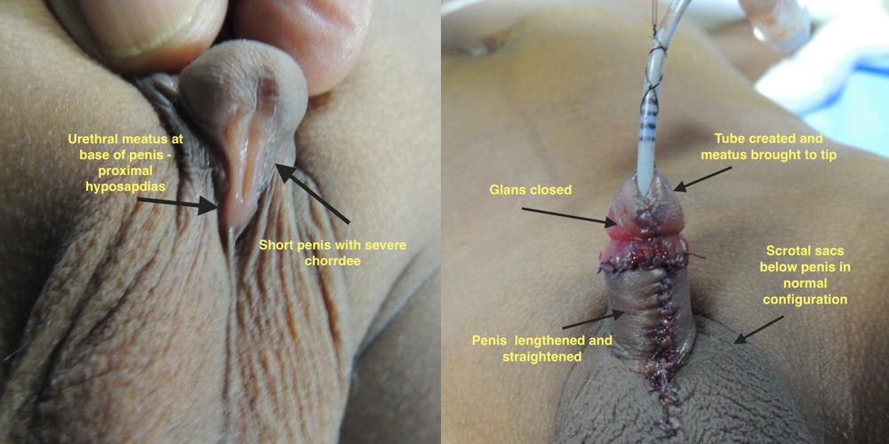 Hypospadiasis - Intim plasztika, nemi megerősítés, uro-esztétika, transzegészségügy